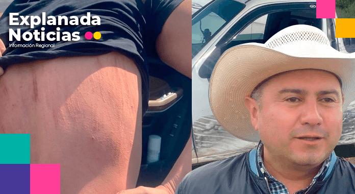 Intentan secuestrar a Edgar Chumacero, culpa a Paco Rodríguez, ex edil de Libres por el altercado